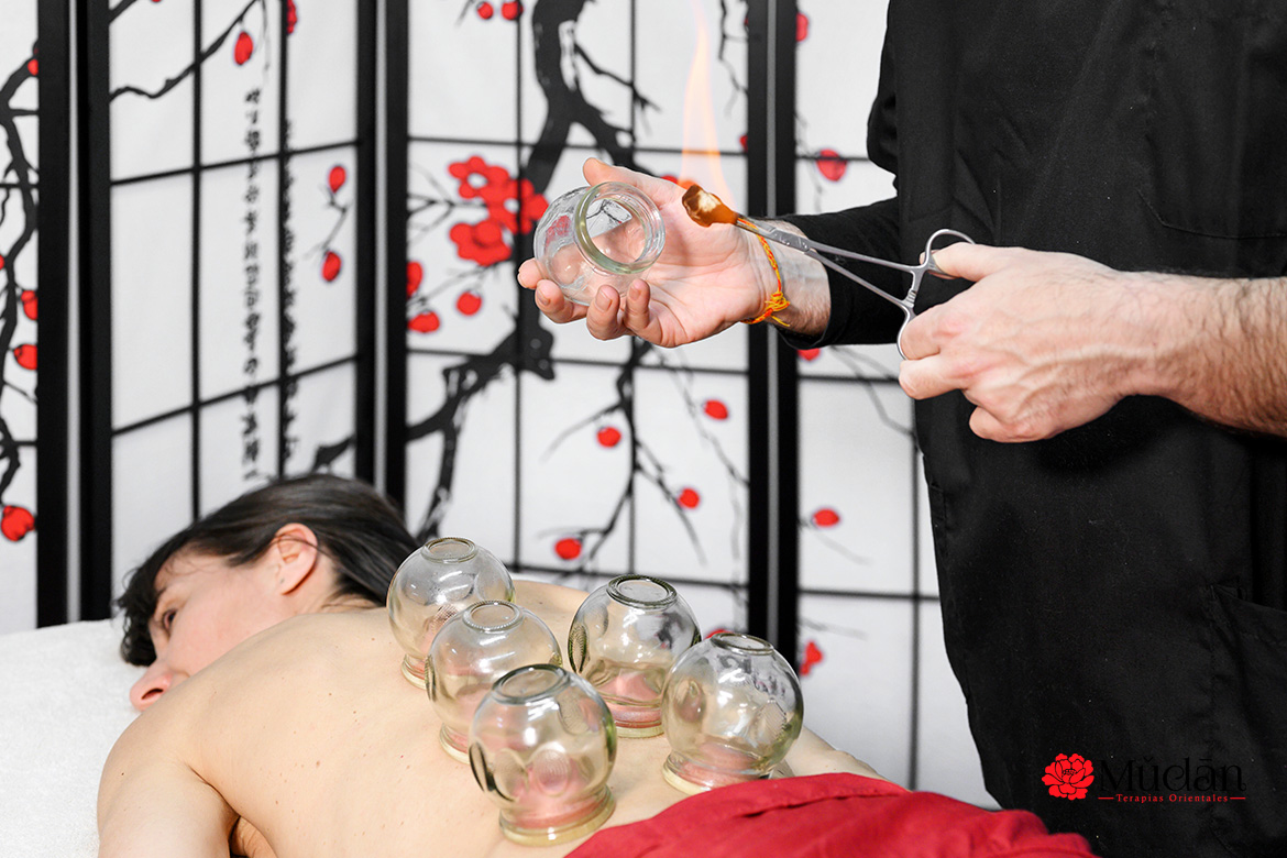 Chinese cupping